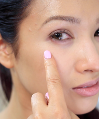 Getting Rid of Puffy Eyes and Dark Circles